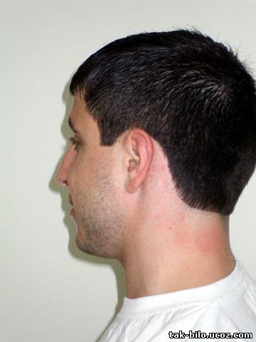 Стрижка стрижётся методом снятия волос ножницами на расчёске, от краевых линий до макушечной зоны, с увеличением.
